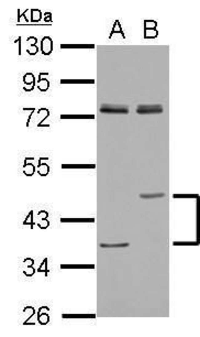 LIPA Rabbit anti-Human, Mouse, Polyclonal, Invitrogen 100 µL; Unconjugated