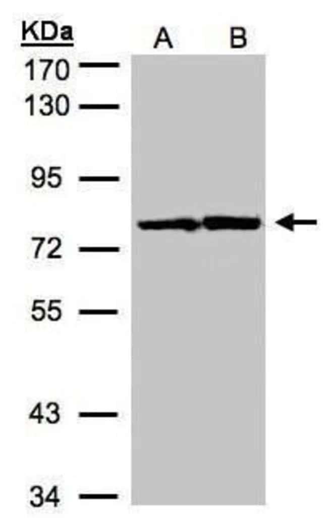 HADHA Rabbit anti-Human, Mouse, Rat, Polyclonal, Invitrogen 100 µL;
