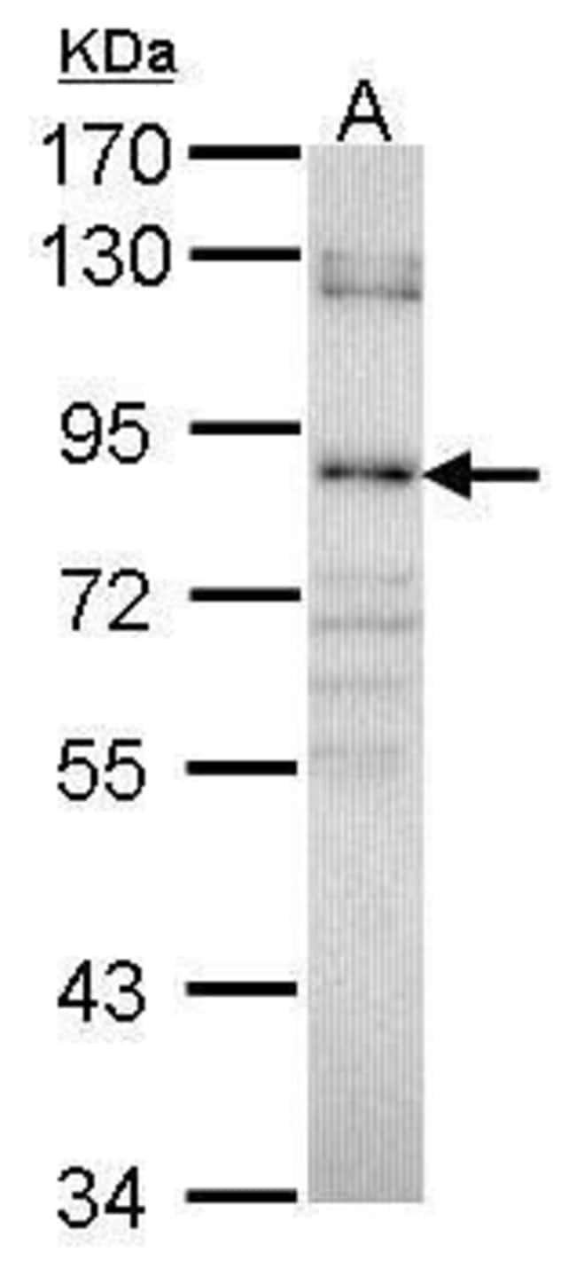 GALC Rabbit anti-Human, Polyclonal, Invitrogen 100 µL; Unconjugated