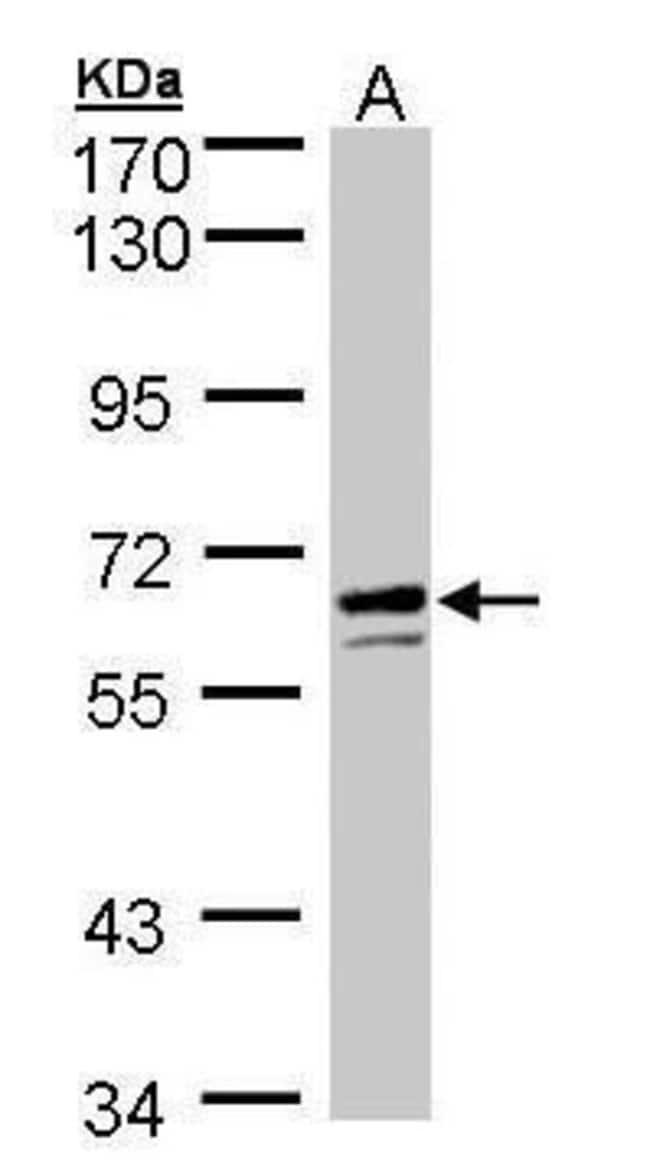 G6PD Rabbit anti-Human, Polyclonal, Invitrogen 100 µL; Unconjugated