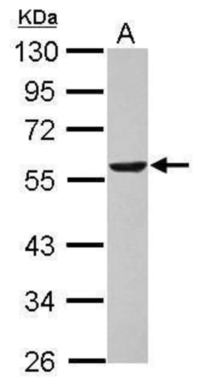 DLD Rabbit anti-Human, Polyclonal, Invitrogen 100 µL; Unconjugated