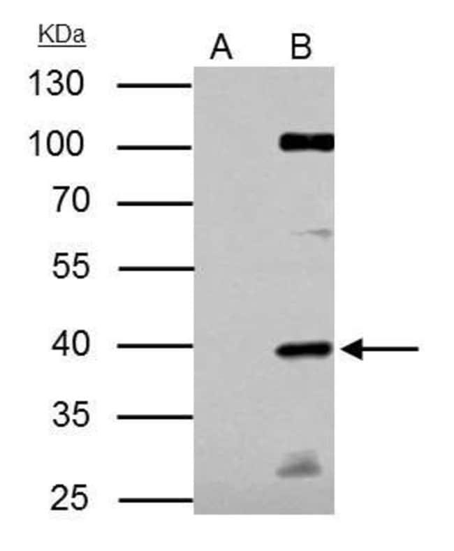 E2F1 Rabbit anti-Human, Mouse, Polyclonal, Invitrogen 100 µL; Unconjugated