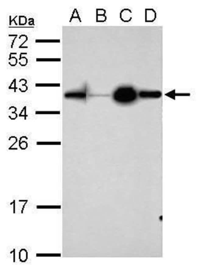 Apolipoprotein D Rabbit anti-Human, Mouse, Polyclonal, Invitrogen 100 µL;