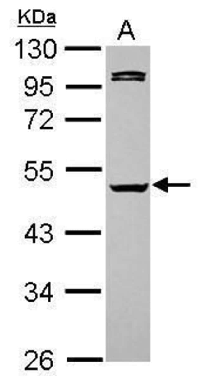 Caspase 1 Rabbit anti-Human, Polyclonal, Invitrogen 100 µL; Unconjugated