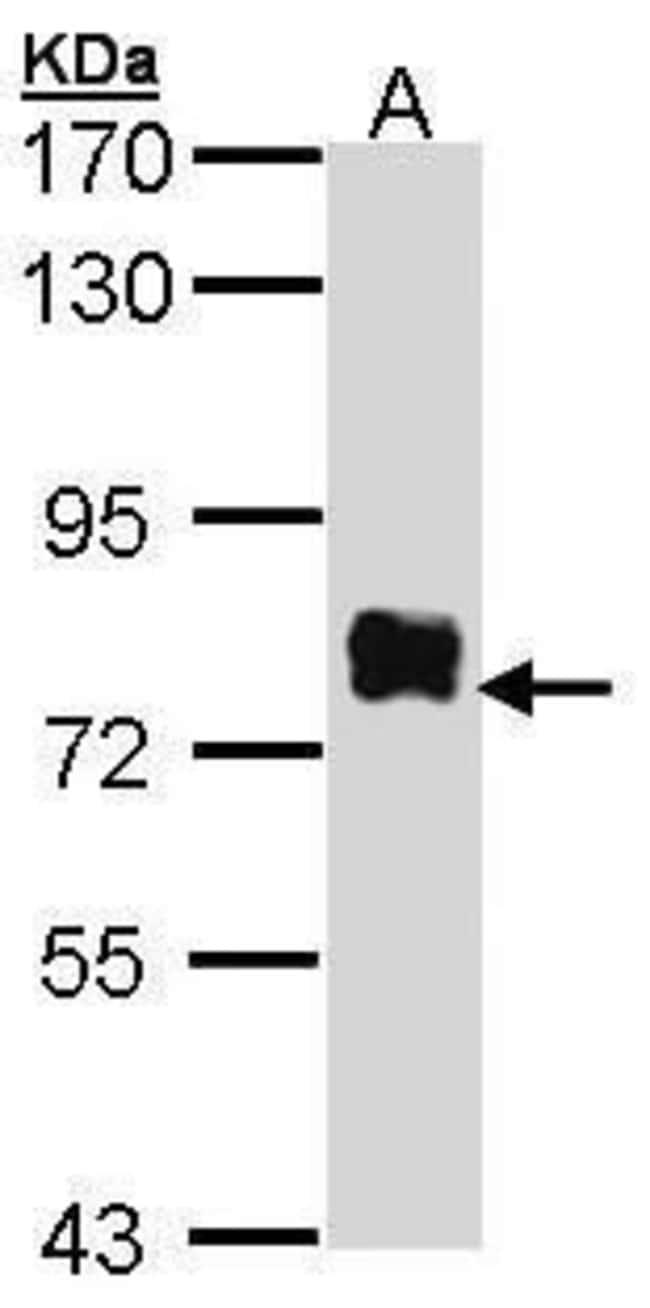 Btk Rabbit anti-Human, Polyclonal, Invitrogen 100 µL; Unconjugated