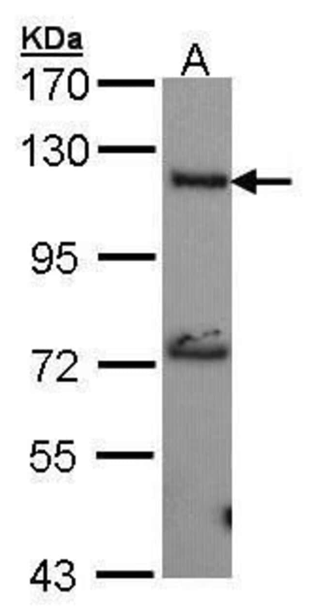ADCY2 Rabbit anti-Human, Polyclonal, Invitrogen 100 µL; Unconjugated