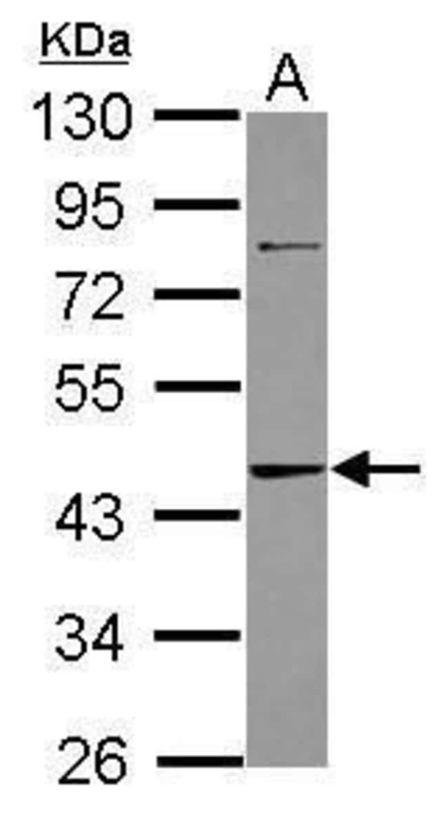 Adenosine Kinase Rabbit anti-Human, Polyclonal, Invitrogen 100 µL;