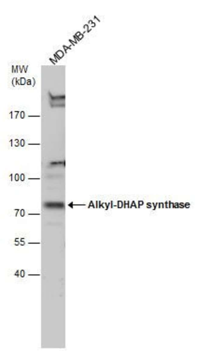 AGPS Rabbit anti-Human, Polyclonal, Invitrogen 100 μL; Unconjugated:Antibodies