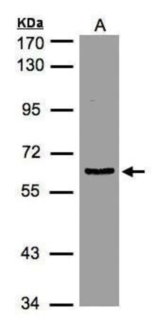 eIF3d Rabbit anti-Human, Mouse, Rat, Polyclonal, Invitrogen 100 µL;