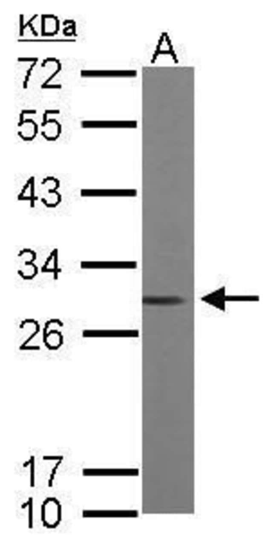 RhoGDI Rabbit anti-Human, Mouse, Polyclonal, Invitrogen 100 µL; Unconjugated