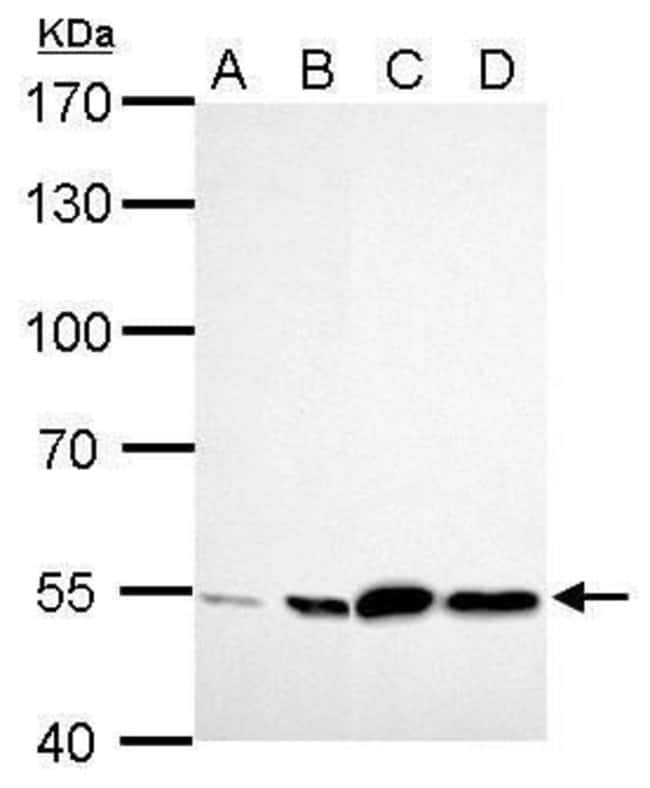 ALDH2 Rabbit anti-Human, Mouse, Polyclonal, Invitrogen 100 µL; Unconjugated