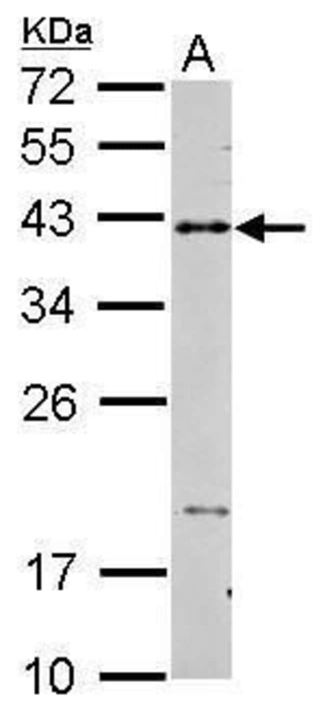 CD40 Rabbit anti-Human, Polyclonal, Invitrogen 100 μL; Unconjugated:Antibodies