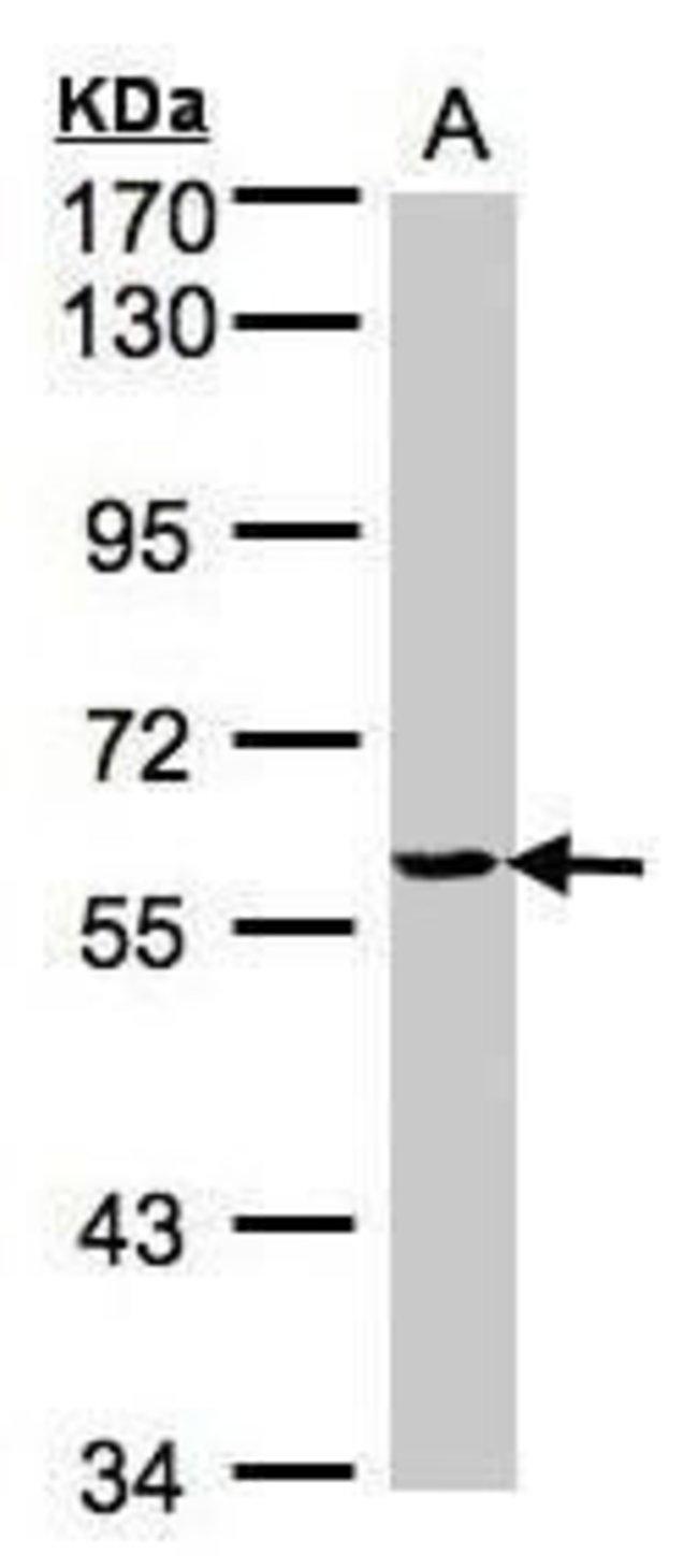 YARS Rabbit anti-Human, Mouse, Polyclonal, Invitrogen 100 µL; Unconjugated