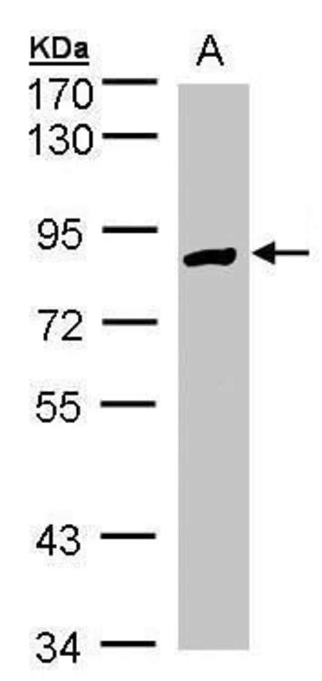 H6PD Rabbit anti-Human, Mouse, Polyclonal, Invitrogen 100 µL; Unconjugated