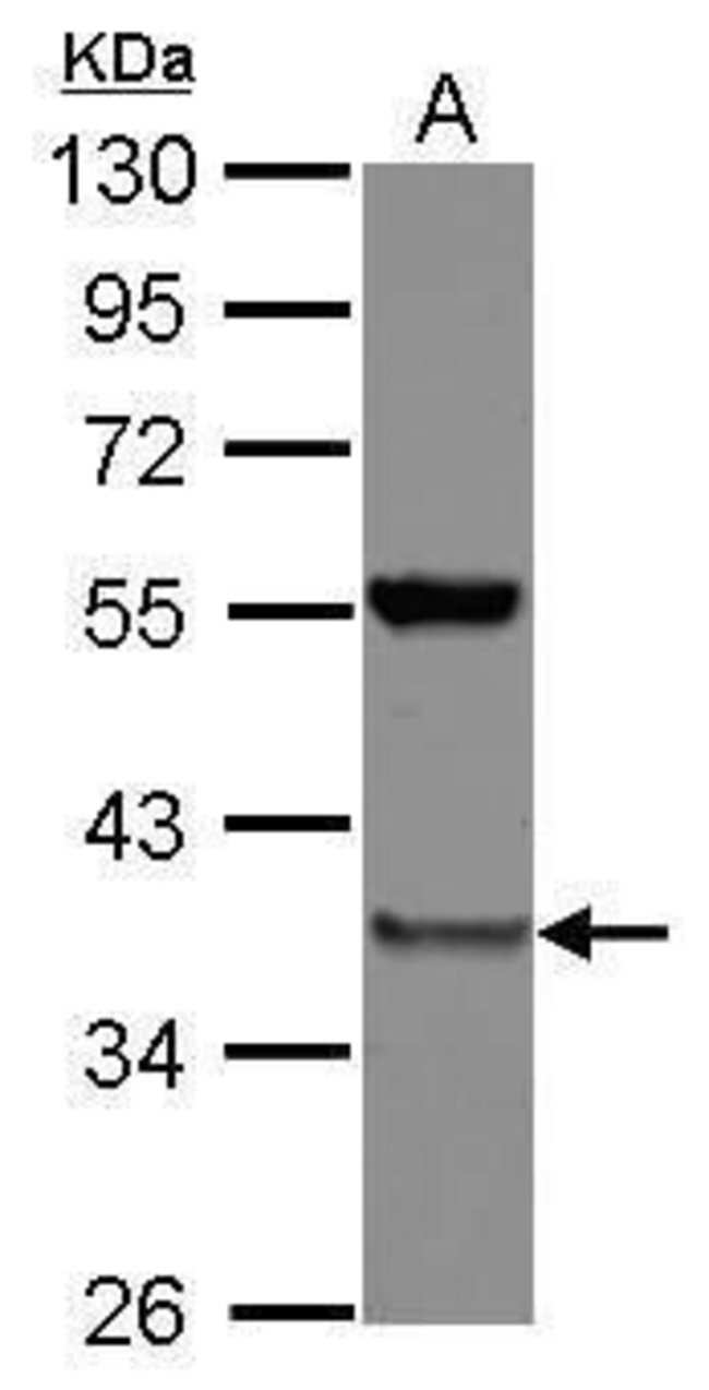 PSMD8 Rabbit anti-Human, Polyclonal, Invitrogen 100 µL; Unconjugated