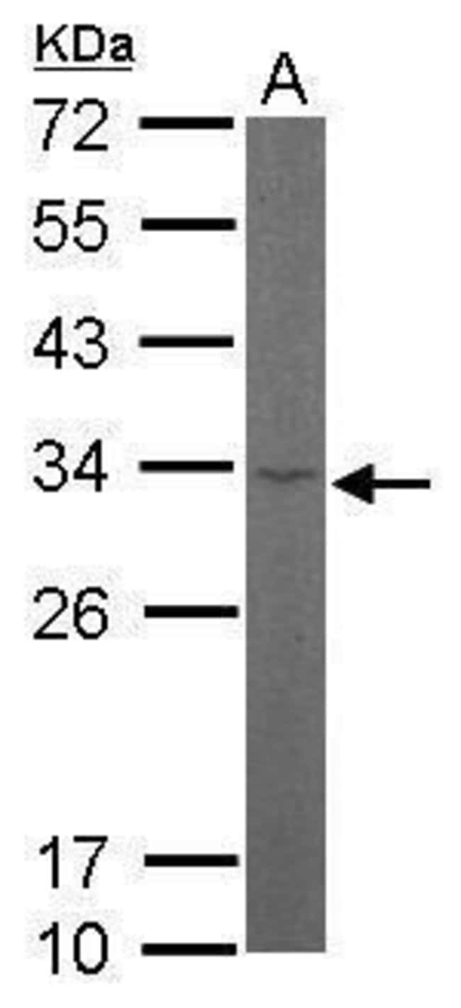 RPL8 Rabbit anti-Human, Mouse, Polyclonal, Invitrogen 100 µL; Unconjugated