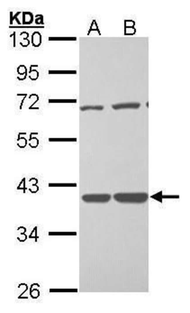 TSTA3 Rabbit anti-Human, Polyclonal, Invitrogen 100 µL; Unconjugated
