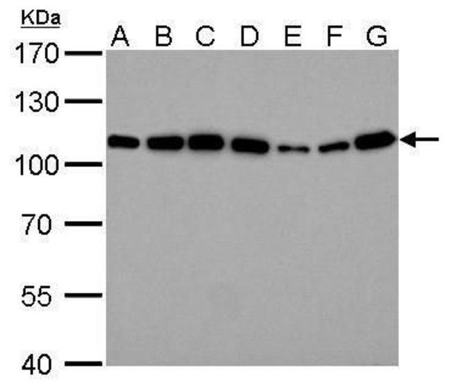 alpha Actinin 4 Rabbit anti-Human, Mouse, Rat, Polyclonal, Invitrogen 100