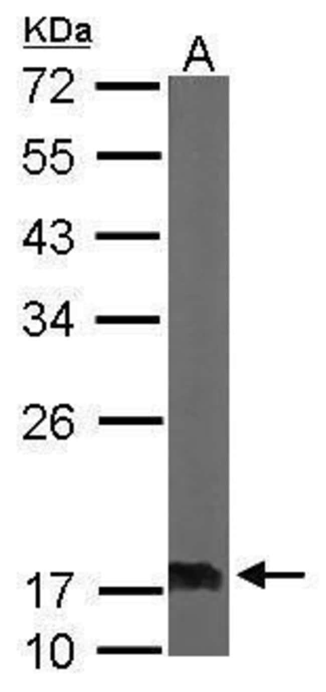 NME2 Rabbit anti-Human, Mouse, Polyclonal, Invitrogen 100 µL; Unconjugated