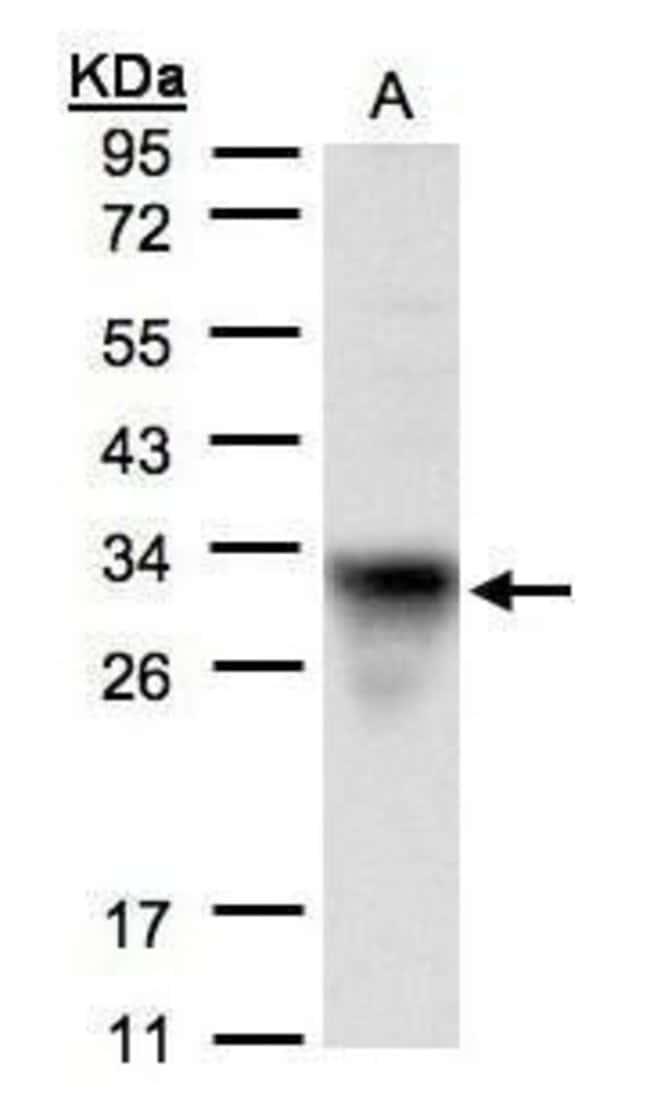 Cytochrome C1 Rabbit anti-Human, Mouse, Polyclonal, Invitrogen 100 µL;
