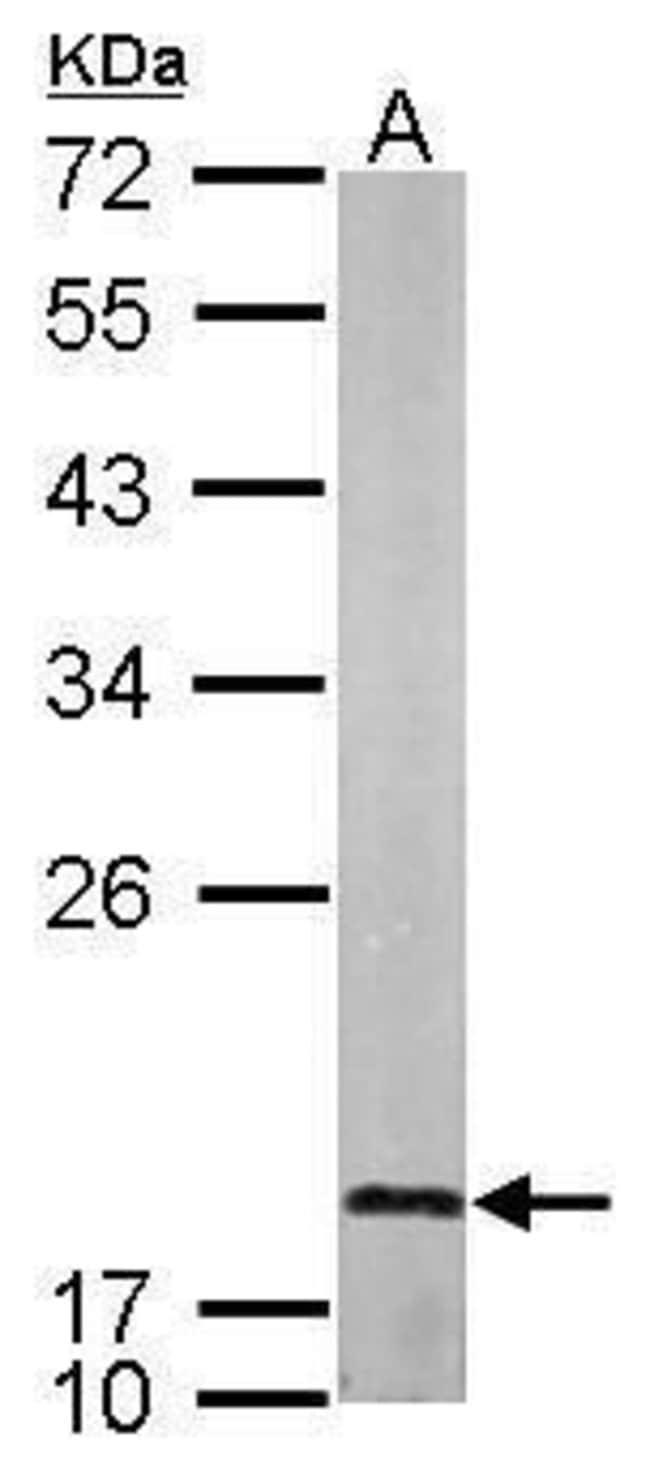 LMO1 Rabbit anti-Human, Mouse, Rat, Polyclonal, Invitrogen 100 µL;