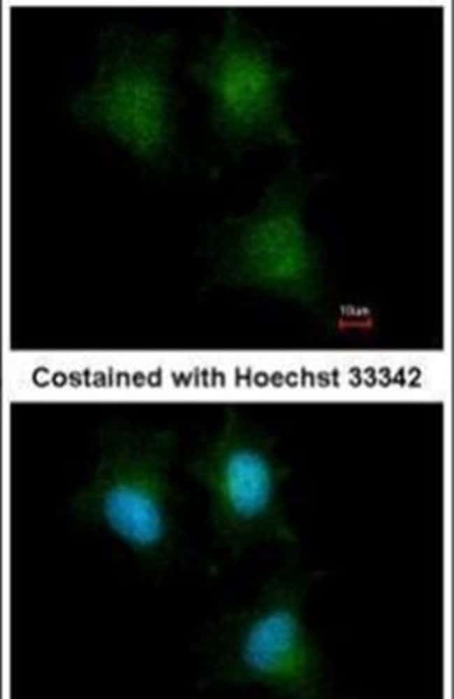 IFITM1 Rabbit anti-Human, Polyclonal, Invitrogen 100 µL; Unconjugated