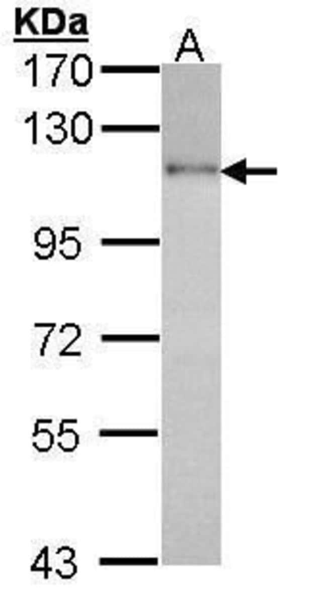 HGS Rabbit anti-Human, Polyclonal, Invitrogen 100 µL; Unconjugated
