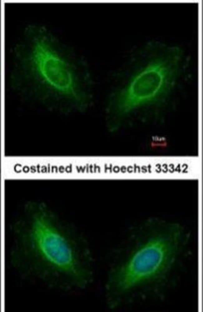 Calmodulin 2 Rabbit anti-Human, Mouse, Polyclonal, Invitrogen 100 µL;