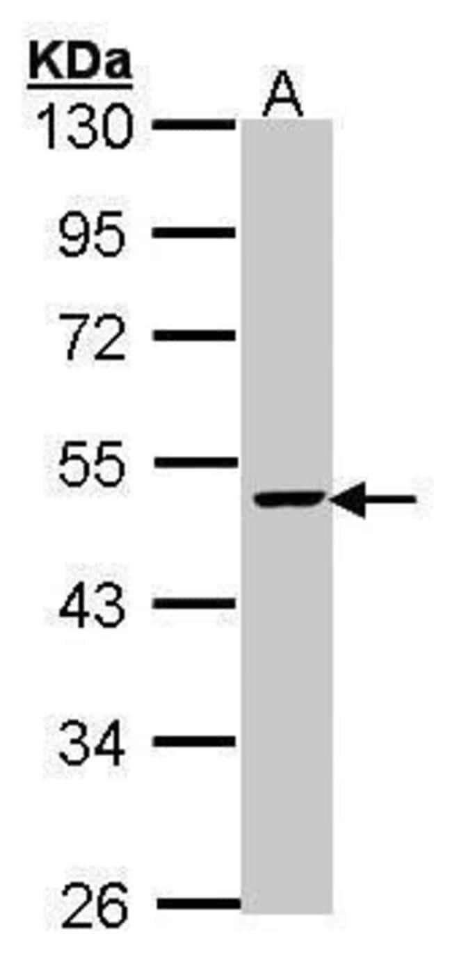 FEN1 Rabbit anti-Human, Mouse, Rat, Polyclonal, Invitrogen 100 µL;