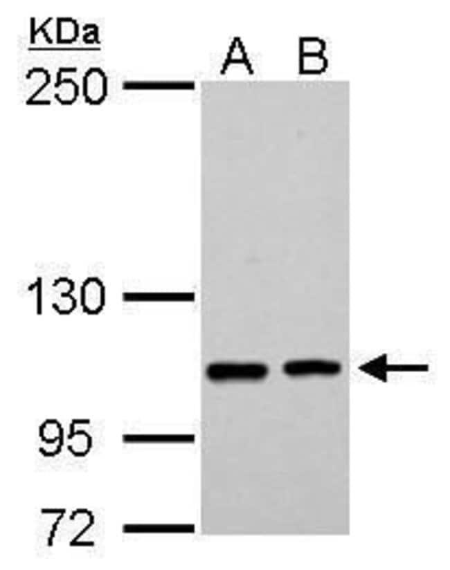 EPB41L3 Rabbit anti-Human, Polyclonal, Invitrogen 100 µL; Unconjugated