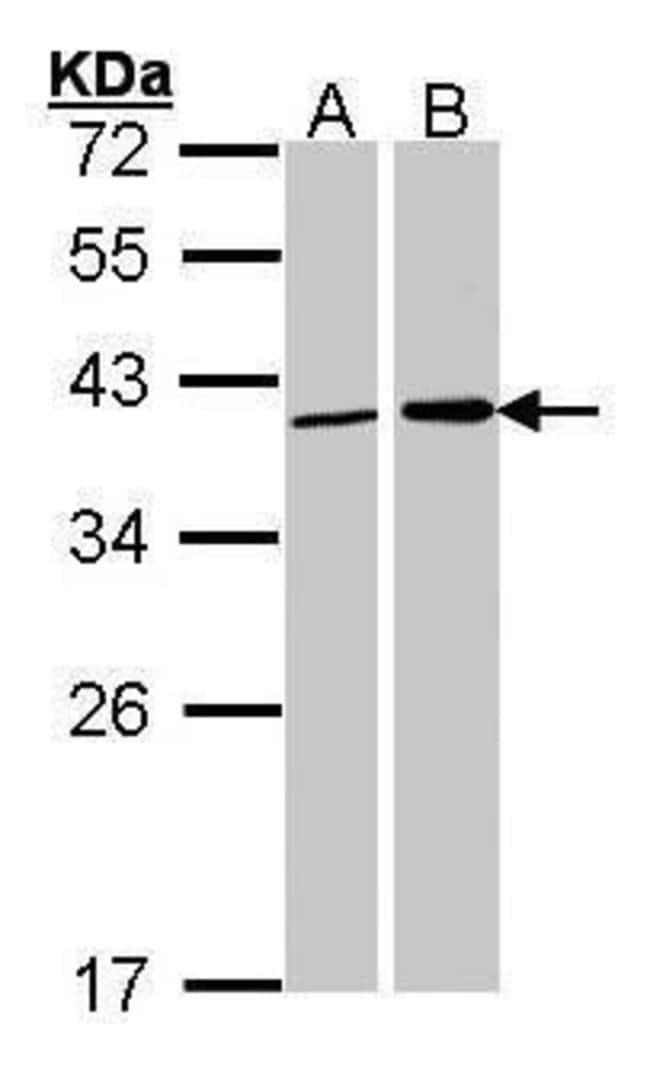 Fibrillarin Rabbit anti-Human, Mouse, Rat, Polyclonal, Invitrogen 100 µL;