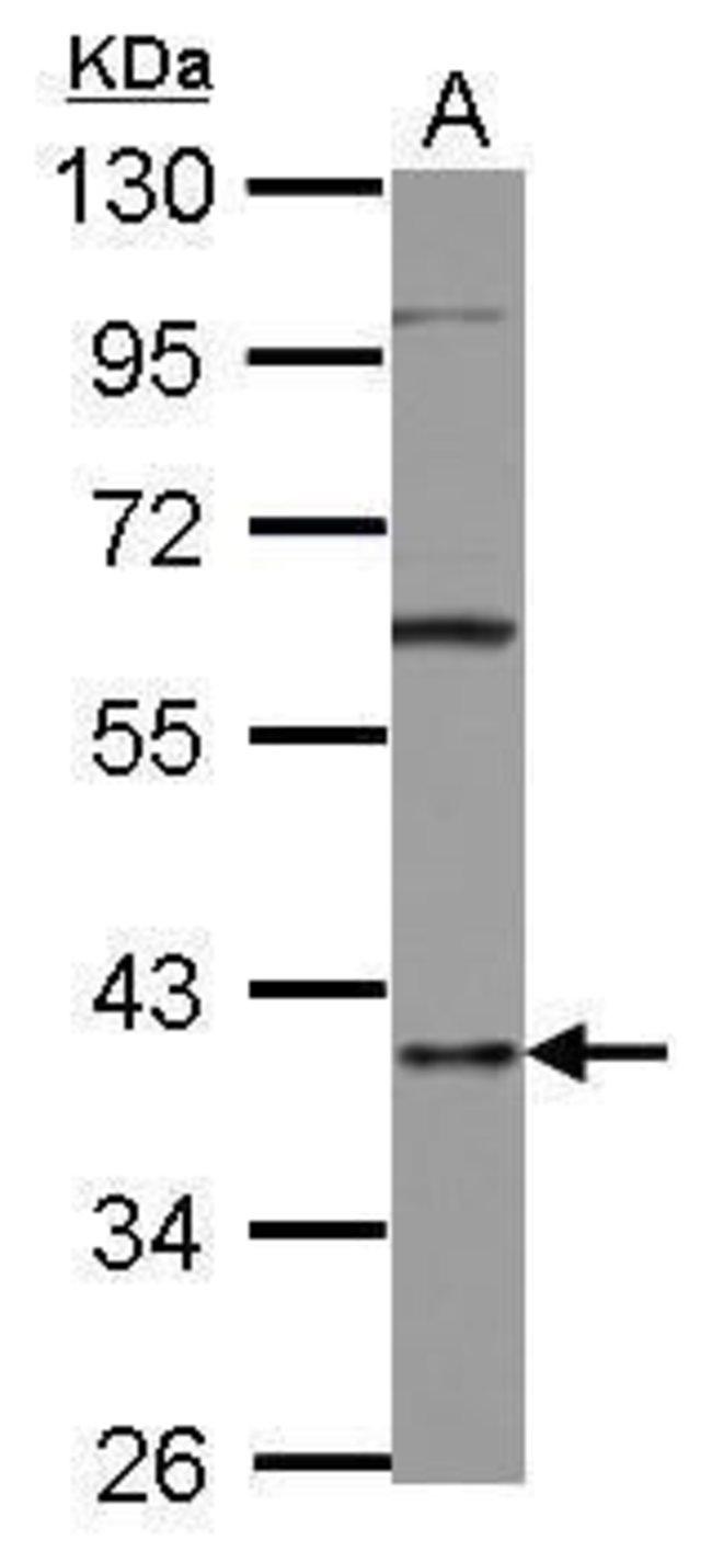 hnRNP D Rabbit anti-Human, Polyclonal, Invitrogen 100 µL; Unconjugated