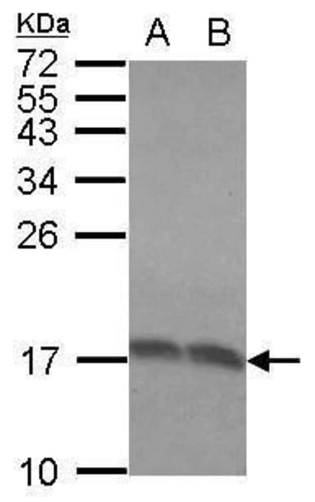 RPLP2 Rabbit anti-Human, Polyclonal, Invitrogen 100 µL; Unconjugated