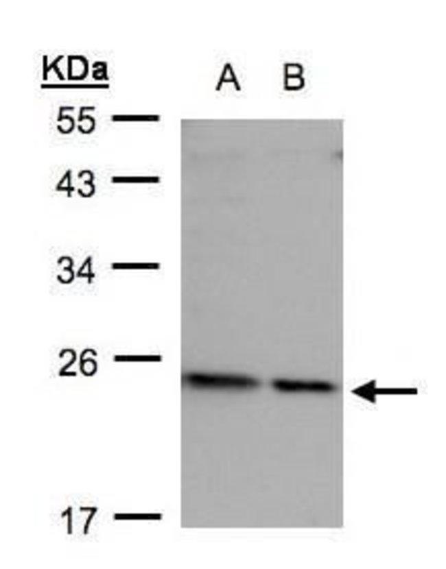 RPL17 Rabbit anti-Human, Polyclonal, Invitrogen 100 μL; Unconjugated:Antibodies