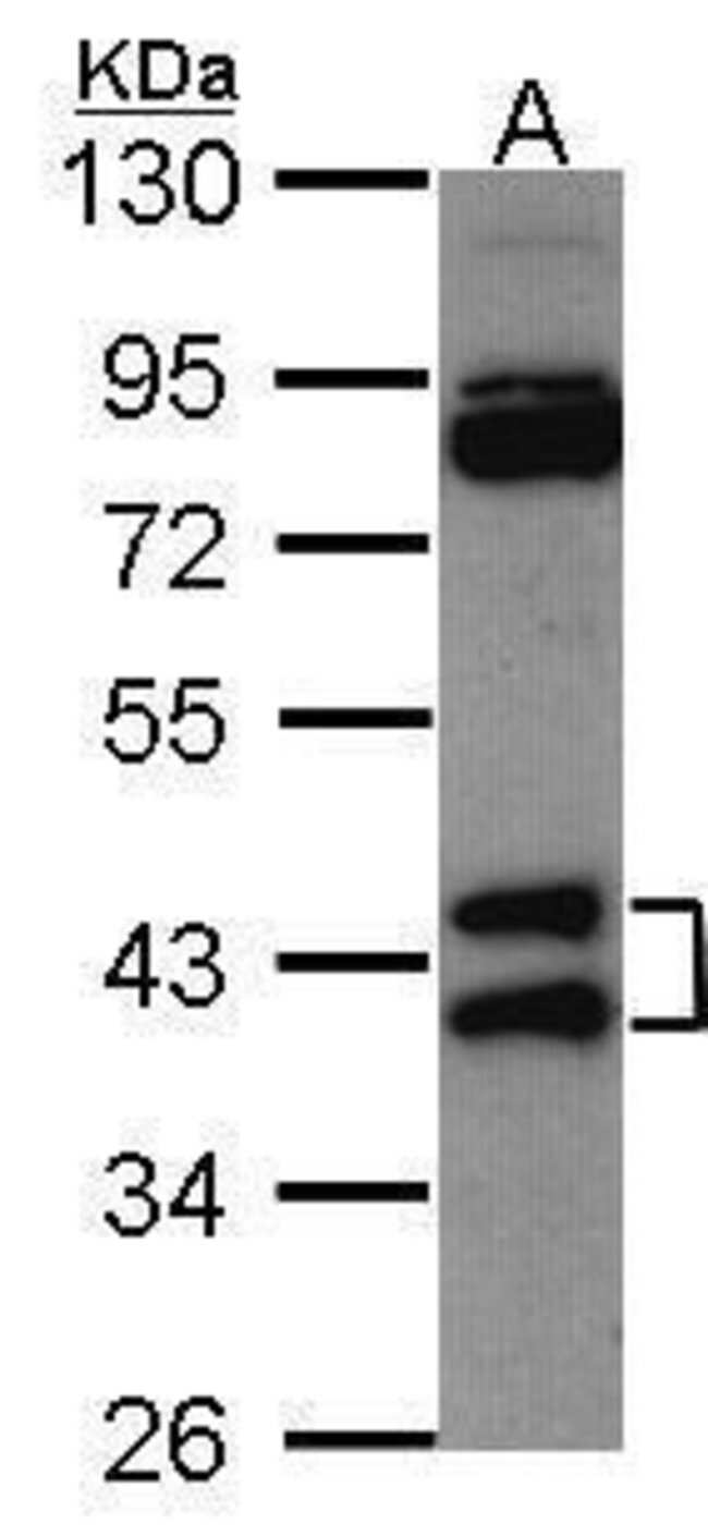 hnRNP AB Rabbit anti-Human, Polyclonal, Invitrogen 100 µL; Unconjugated