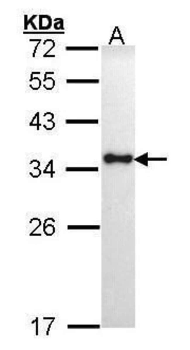HLA-DRA Rabbit anti-Human, Polyclonal, Invitrogen 100 µL; Unconjugated