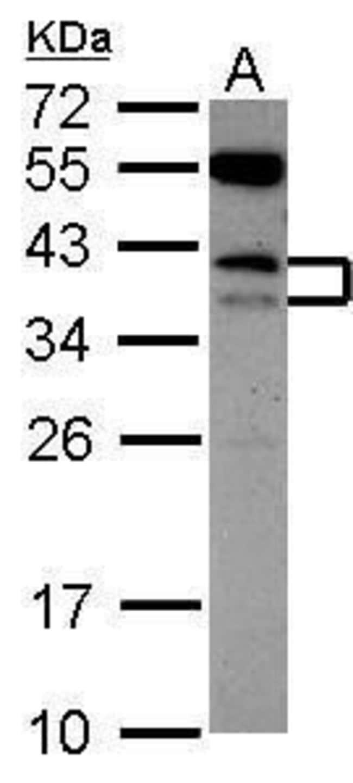 CD79b Rabbit anti-Human, Polyclonal, Invitrogen 100 µL; Unconjugated