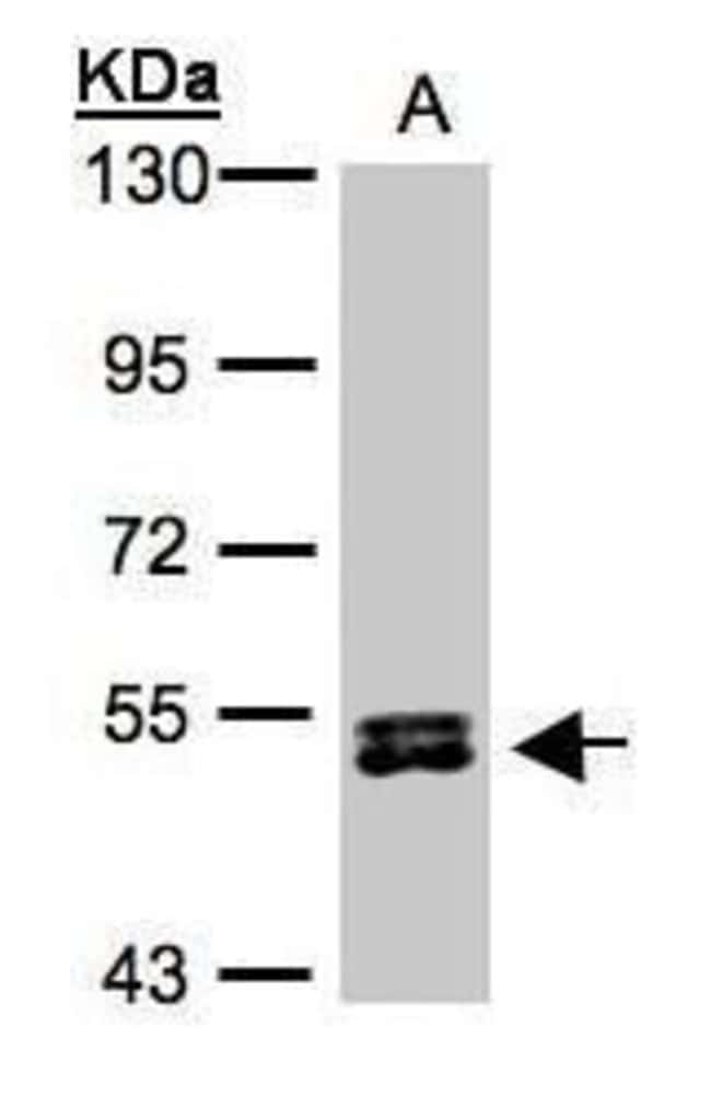 RPS6KB2 Rabbit anti-Human, Mouse, Polyclonal, Invitrogen 100 µL; Unconjugated