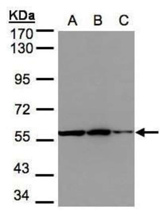PHGDH Rabbit anti-Human, Mouse, Polyclonal, Invitrogen 100 µL; Unconjugated