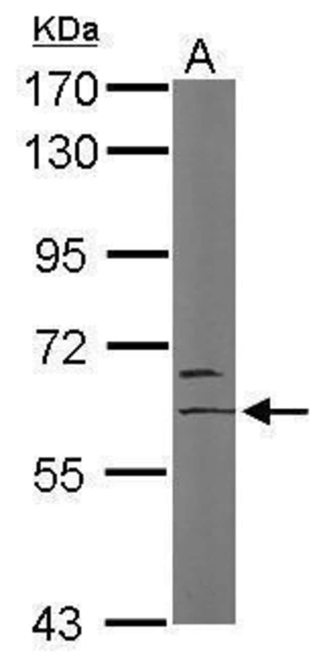 MYST2 Rabbit anti-Human, Mouse, Polyclonal, Invitrogen 100 µL; Unconjugated