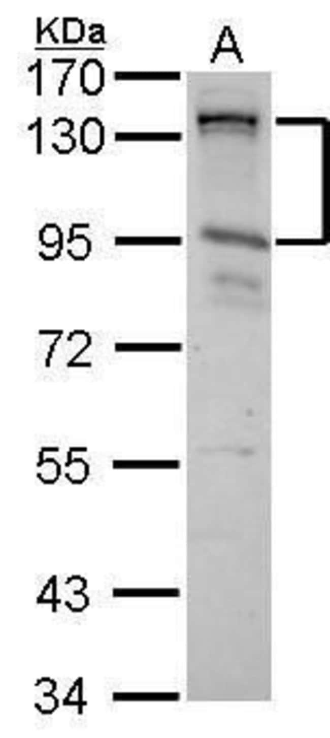 CIZ1 Rabbit anti-Human, Polyclonal, Invitrogen 100 µL; Unconjugated