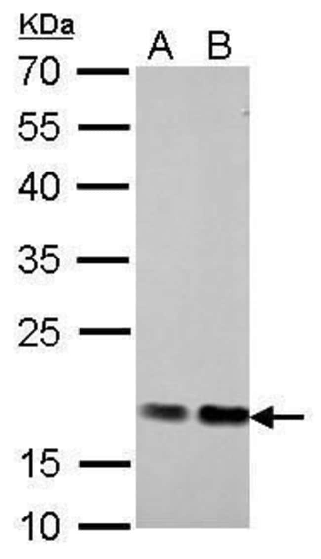 Cofilin Rabbit anti-Human, Mouse, Rat, Polyclonal, Invitrogen 100 µL;