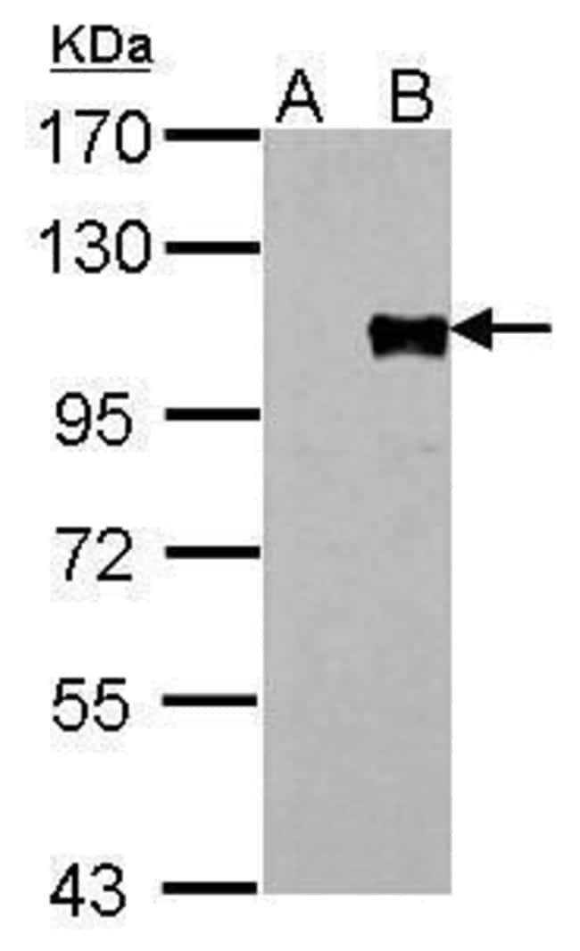 FOXM1 Rabbit anti-Human, Polyclonal, Invitrogen 100 µL; Unconjugated