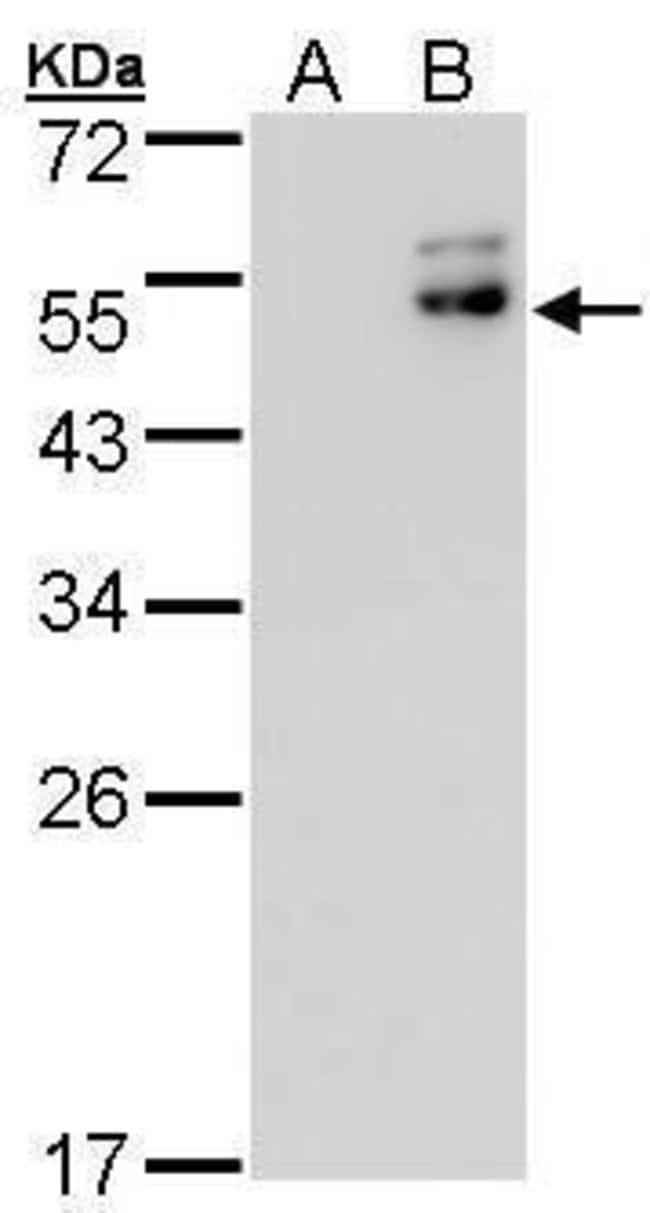 DPF2 Rabbit anti-Human, Polyclonal, Invitrogen 100 µL; Unconjugated
