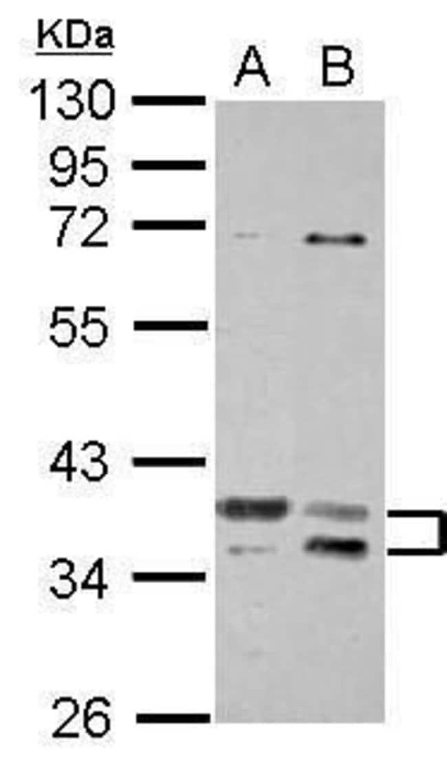 TSFM Rabbit anti-Human, Polyclonal, Invitrogen 100 µL; Unconjugated