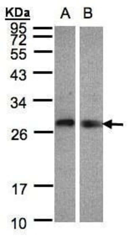 LYPLA2 Rabbit anti-Human, Mouse, Polyclonal, Invitrogen 100 µL; Unconjugated