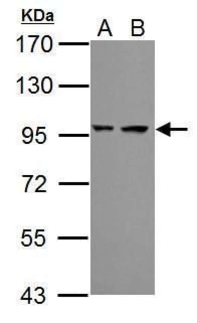 PSMD2 Rabbit anti-Human, Mouse, Polyclonal, Invitrogen 100 µL; Unconjugated