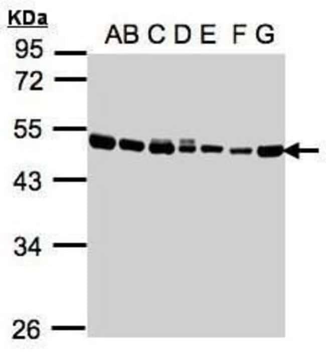 EEF1A2 Rabbit anti-Human, Mouse, Polyclonal, Invitrogen 100 µL; Unconjugated