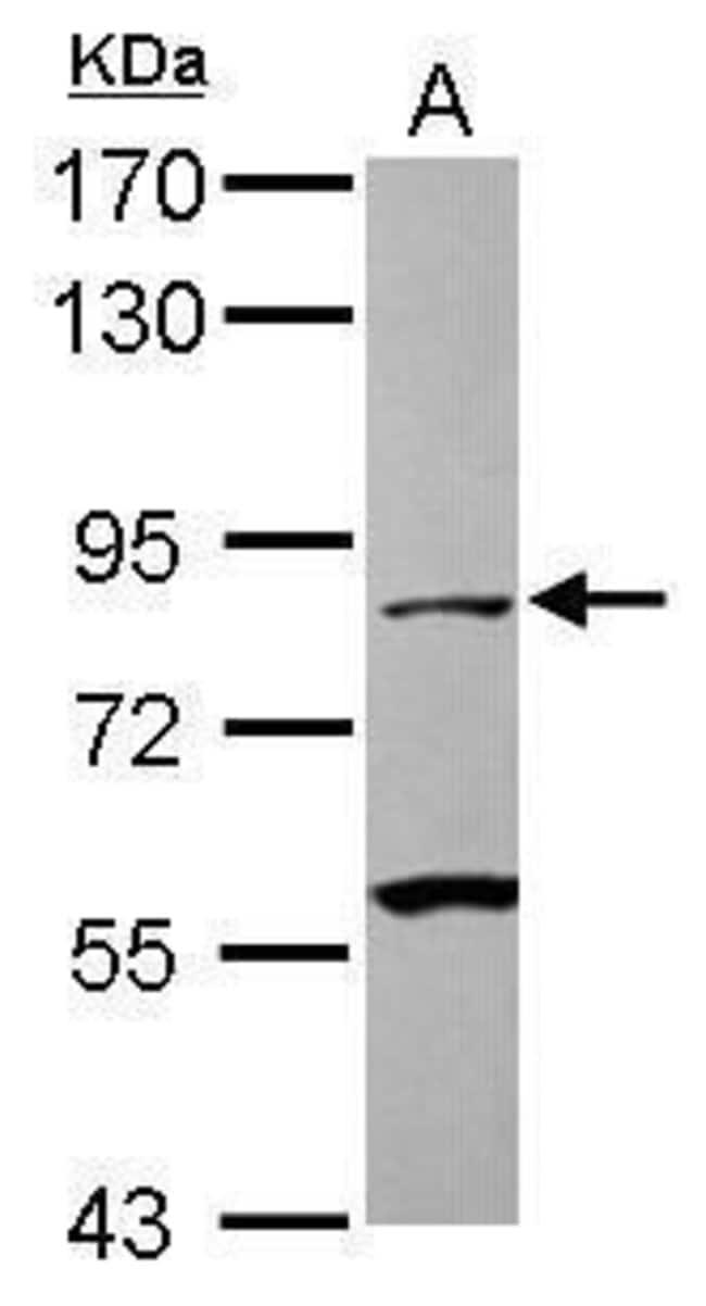 Mu-Calpain Rabbit anti-Human, Polyclonal, Invitrogen 100 µL; Unconjugated