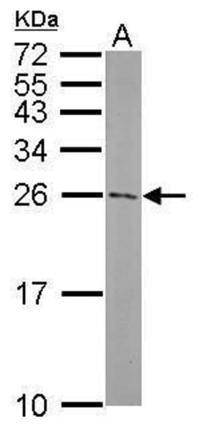 ATG5 Rabbit anti-Mouse, Polyclonal, Invitrogen 100 µL; Unconjugated
